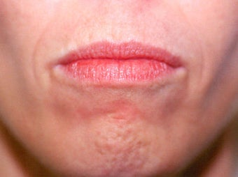 Before and After Upper & Lower Lip Lift before 65360