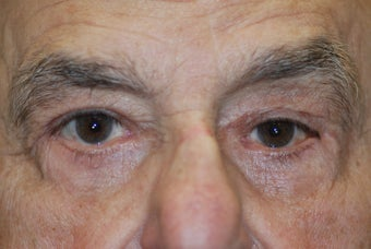Upper and Lower Lid Blepharoplasty after 917842