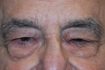 Upper and Lower Lid Blepharoplasty before 917842