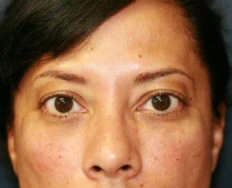 Radiesse to fill lower eyelid hollows after 845634