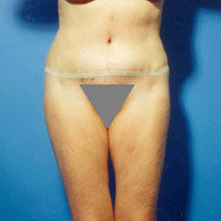 Abdominoplasty after 279330