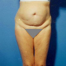 Abdominoplasty before 279330