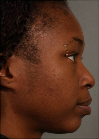 31 year old african american female with weak chin would like non surgical treatment after 798471