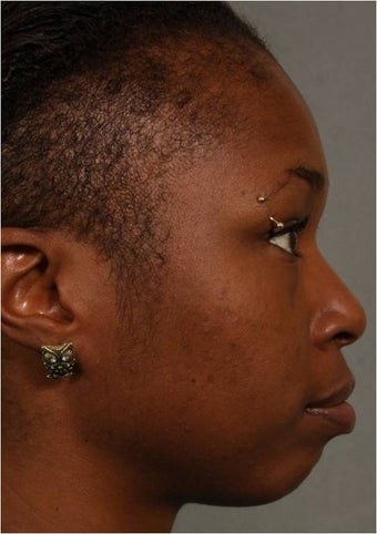 31 year old african american female with weak chin would like non surgical treatment before 798471