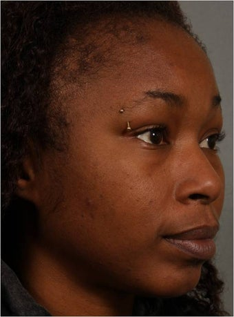 31 year old african american female with weak chin would like non surgical treatment 798471