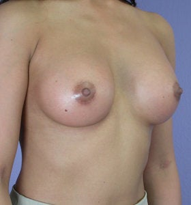 Breast Augmentation after 281436