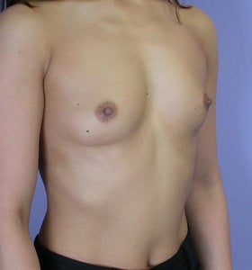 Breast Augmentation before 281436