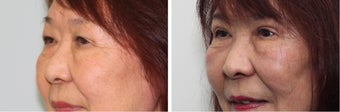 Before and 2 month after double eyelid surgery after 683360