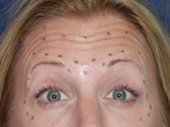 Before & After Botox before 931511