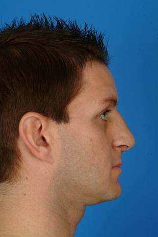 33 year old male who wanted to improve his breathing, less of a hump and droopy tip, but he wanted to have masculine nose. after 932285