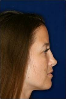 Non Surgical Rhinoplasty 798621
