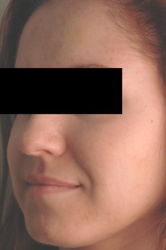 Hormonal Acne Treatment in Los Angeles after 82987