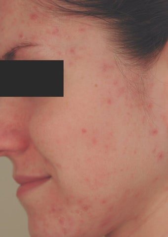 Hormonal Acne Treatment in Los Angeles before 82987