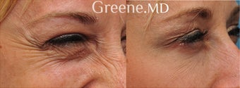 Botox treatment to minimize the appearance of crows feet before 904908