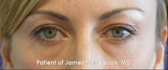 Lower Eyelid Rejuvenation (Tear Trough / Under Eye Hollows) before 959407