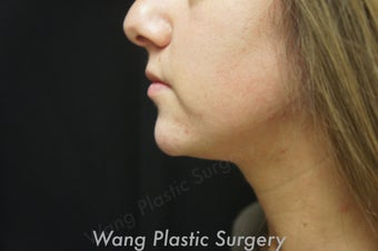 Chin Augmentation with Radiesse filler after 693342