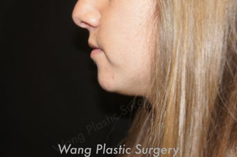 Chin Augmentation with Radiesse filler before 693342