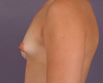 Breast Asymmetry Correction before 281319