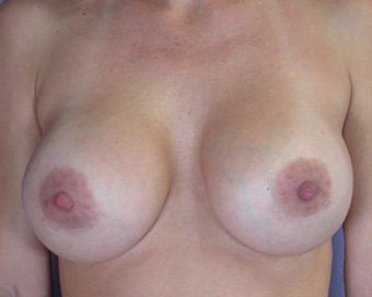 Breast Implant Correction after 281301