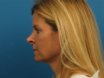 Revision Rhinoplasty before 881549