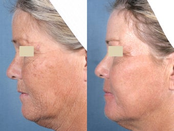 Laser Resurfacing before 104661