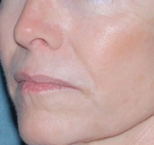 Laser Resurfacing for Wrinkles after 658911