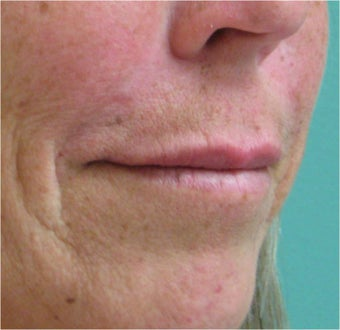 Juvederm to the upper lip after 77463