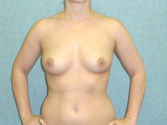 Fat transfer breast augmentation marylan