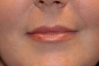 Juvederm in Upper Lip after 872407