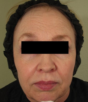 Facial rejuvenation with Sculptra, Dermapen, and Botox before 772537