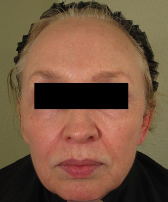 Facial rejuvenation with Sculptra, Dermapen, and Botox after 772537