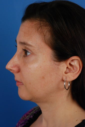 Revision rhinoplasty patient after 2 prior rhinoplasties 828357