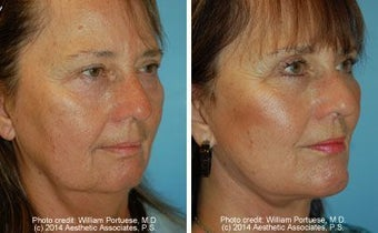 Facelift, Upper and Lower Blepharoplasty and Chin Implant before 162251