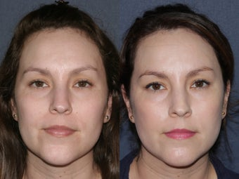 Before & After Laser Resurfacing 806230