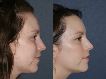 Before & After Laser Resurfacing after 806230