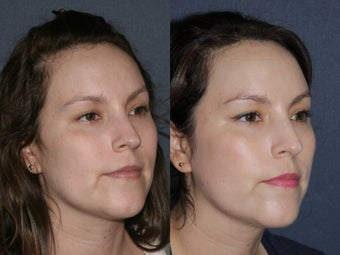 Before & After Laser Resurfacing before 806230