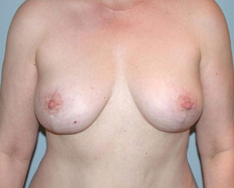 Breast Lift Restores Pre-Breast Feeding Shape after 876598