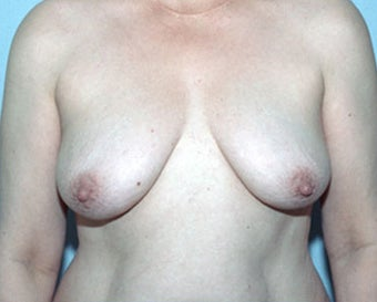 Breast Lift Restores Pre-Breast Feeding Shape before 876598