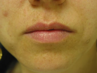 Lip Augmentation  before 344324