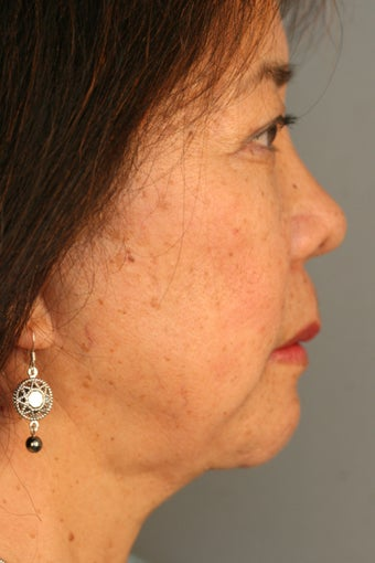 Female Chin Implant  after 887064