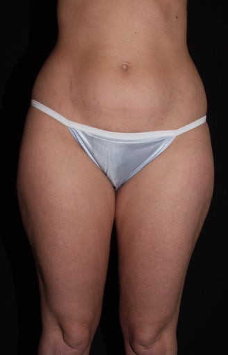 Vaser Liposuction of Lateral and Medial Thighs, Hips and Abdomen before 624865