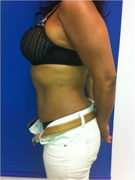 Laser Liposuction after 561227