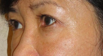 Restylane  after 959481