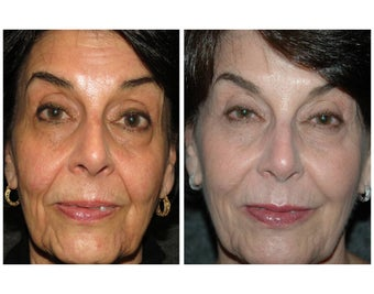 "No-downtime ""Liquid Lift"" for woman in her mid-60's before 887996"