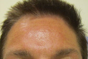 45 year old male injected for forehead lines after 680451