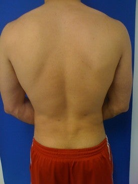 Laser Lipo after 333244