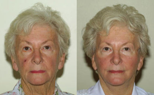 Face and Neck Lift before 223587