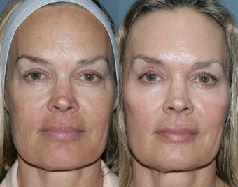 Fraxel Repair for sun damage and wrinkles before 103862