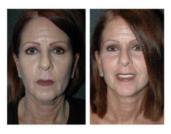 Lower Facelift and Necklift for Dramatic, Natural-Appearing Rejuvenation 896419