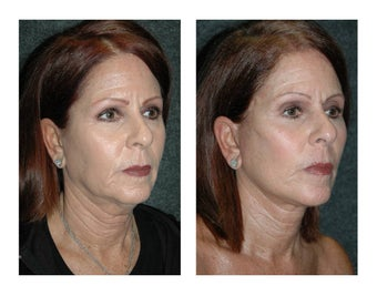 Lower Facelift and Necklift for Dramatic, Natural-Appearing Rejuvenation after 896419
